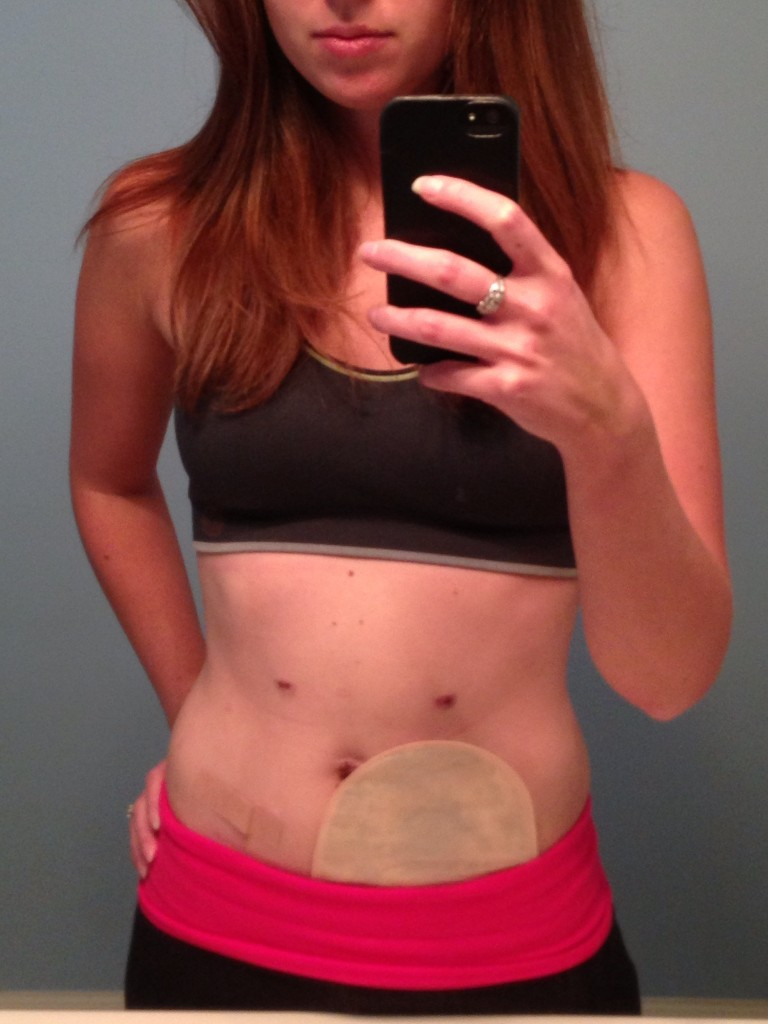 surgery recovery scars pain stephanie hughes stolen colon crohns osotmy ileostomy blog